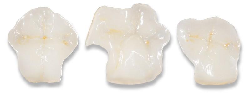 ganzheitliche Zahnheilkunde Dr. Heike Kretschmar - Ansicht von Inlays