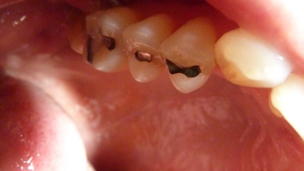 ganzheitliche Zahnheilkunde Dr. Heike Kretschmar - Zähne vor Amalgamentfernung
