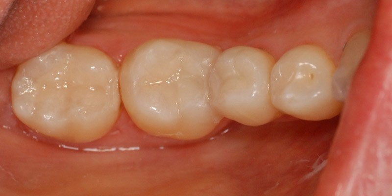 ganzheitliche Zahnheilkunde Dr. Heike Kretschmar - Zustand nach Amalgamsanierung