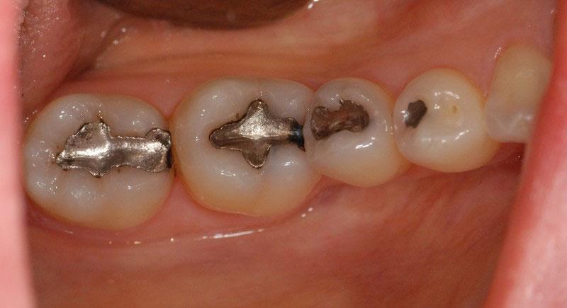 ganzheitliche Zahnheilkunde Dr. Heike Kretschmar - Zähne mit Amalgamfüllung