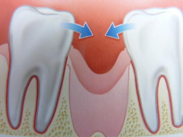 ganzheitliche Zahnheilkunde Dr. Heike Kretschmar - Versorgung einer Lücke durch eine Brücke ohne Knochenersatzmaterial