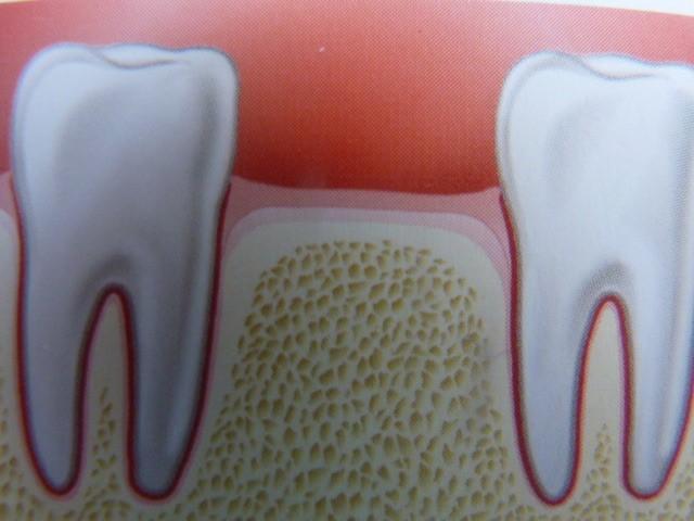ganzheitliche Zahnheilkunde Dr. Heike Kretschmar - Versorgung einer Lücke durch eine Brücke mit Knochenersatzmaterial