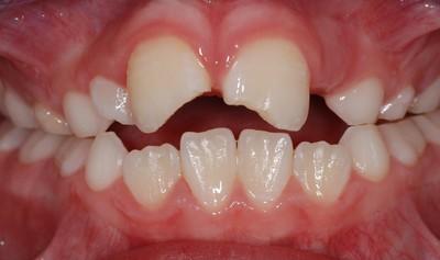 ganzheitliche Zahnheilkunde Dr. Heike Kretschmar - Fraktur der Frontzähne