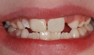 ganzheitliche Zahnheilkunde Dr. Heike Kretschmar - Zustand nach Versorgung