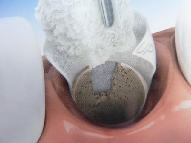 ganzheitliche Zahnheilkunde Dr. Heike Kretschmar - Membran mit Knochenersatzmaterial