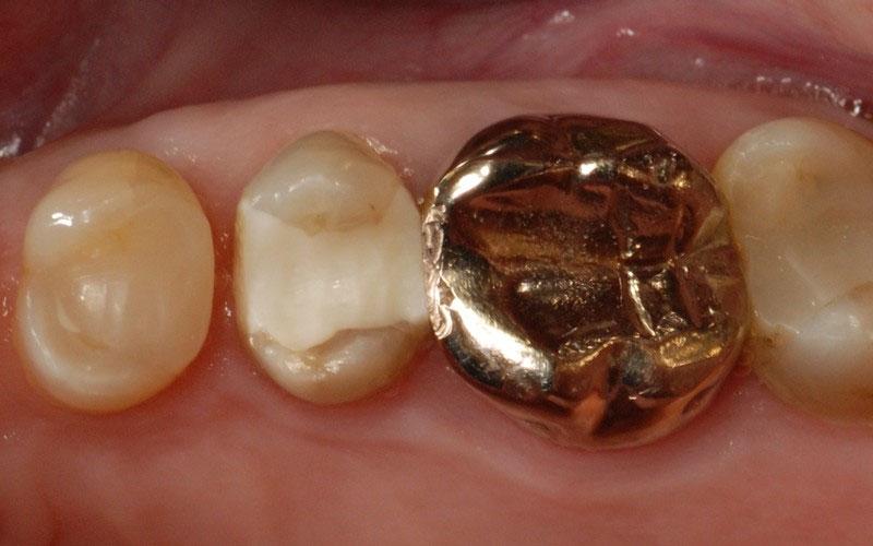 ganzheitliche Zahnheilkunde Dr. Heike Kretschmar - ganzheitliche Zahnheilkunde Dr. Heike Kretschmar -