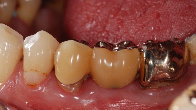 ganzheitliche Zahnheilkunde Dr. Heike Kretschmar - Metallkeramikbrücke