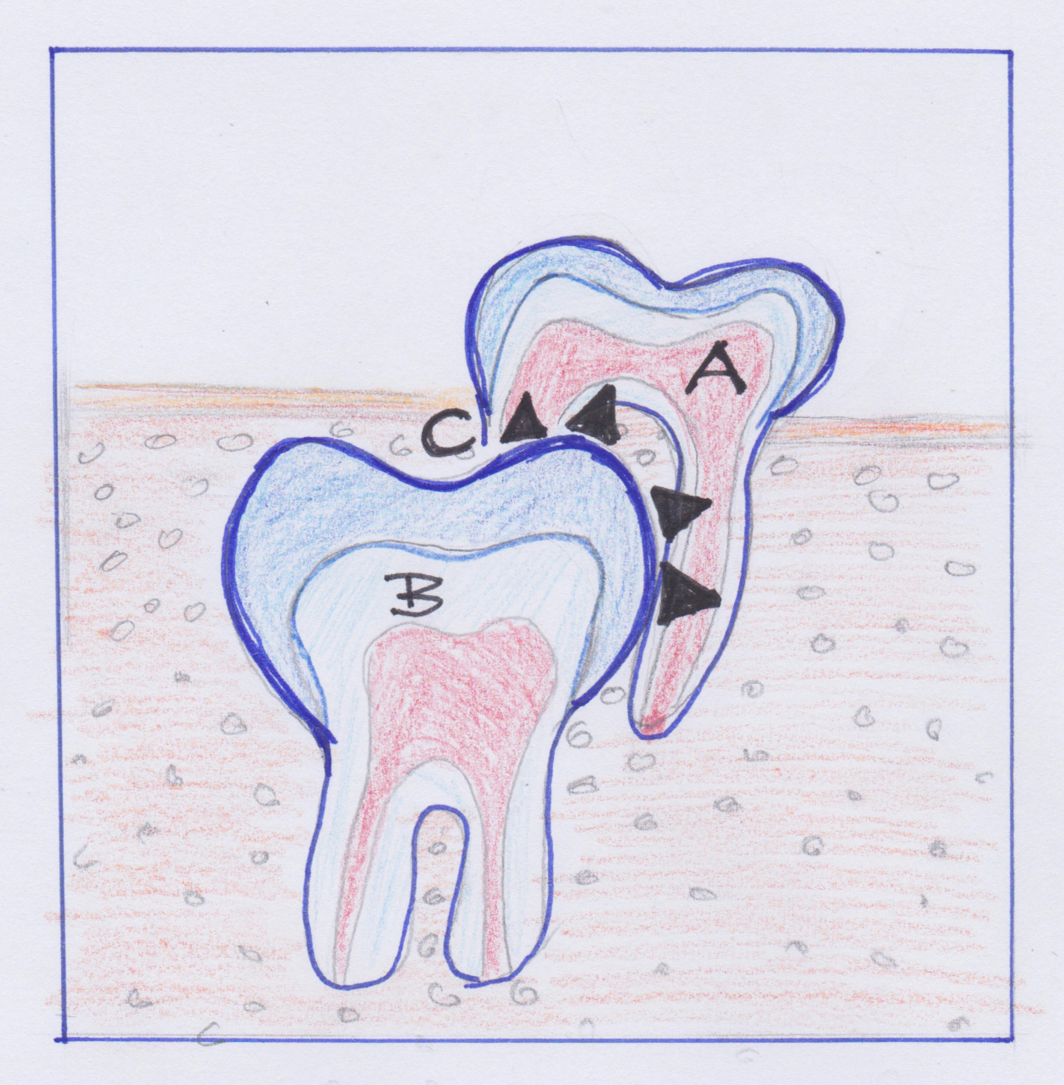 ganzheitliche Zahnheilkunde Dr. Heike Kretschmar - resorbierte Milchzahnwurzel