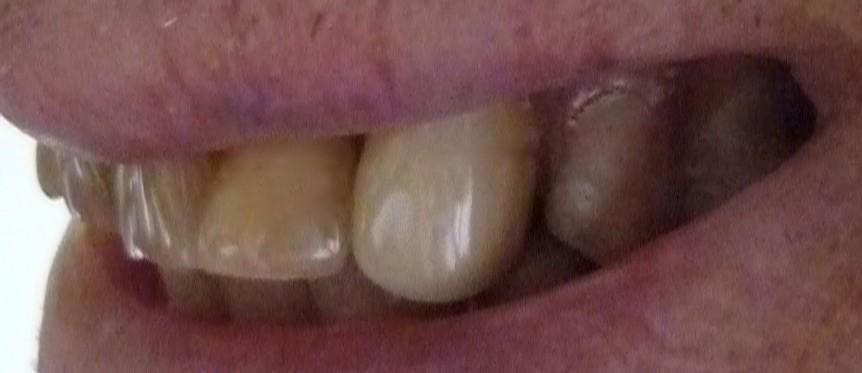 ganzheitliche Zahnheilkunde Dr. Heike Kretschmar - Klammer eines Valplastersatzes
