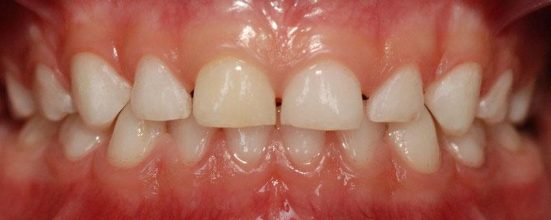 ganzheitliche Zahnheilkunde Dr. Heike Kretschmar - Zustand nach PZR