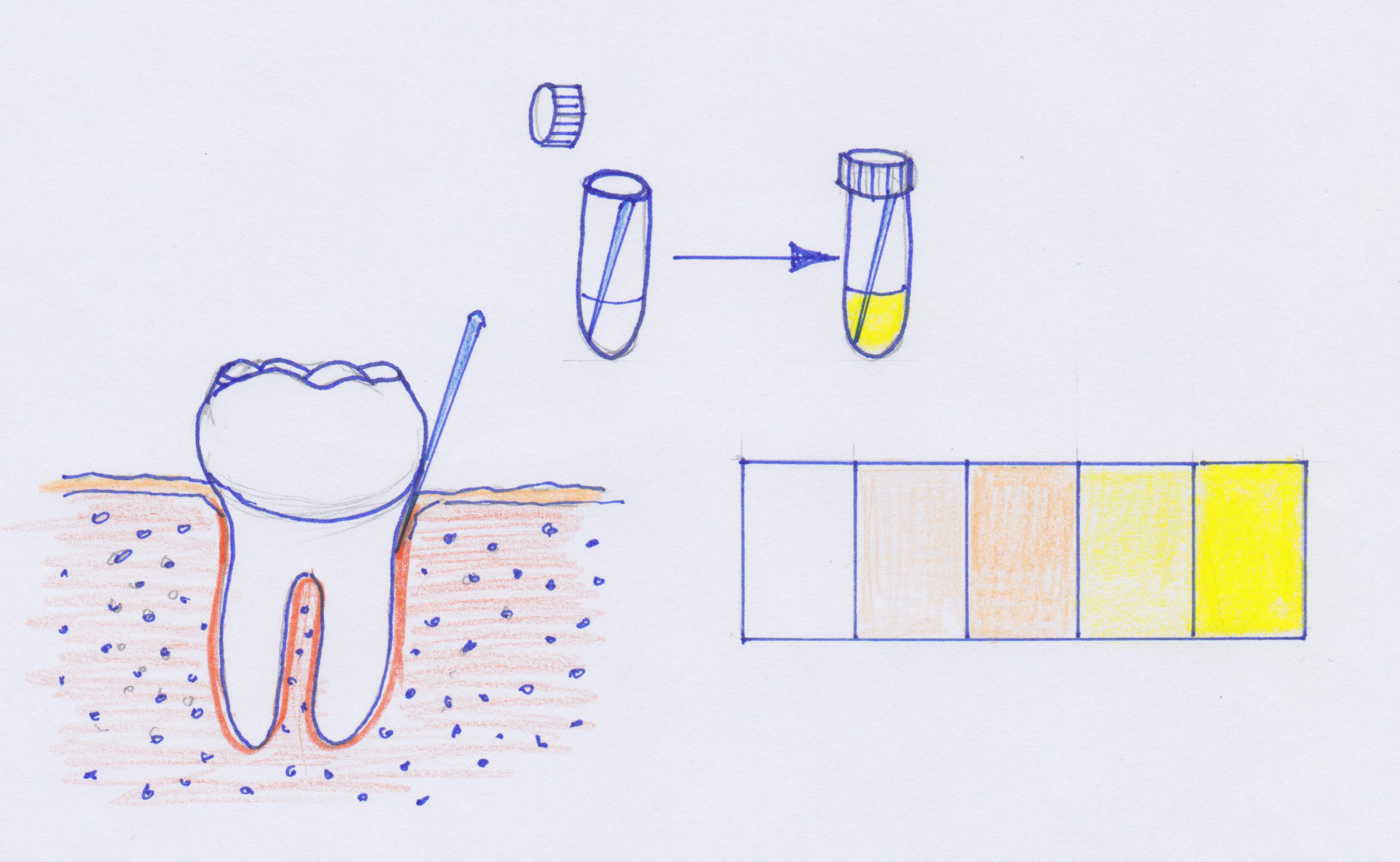 ganzheitliche Zahnheilkunde Dr. Heike Kretschmar - OroTox–Test