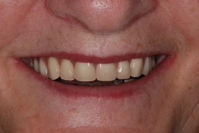 ganzheitliche Zahnheilkunde Dr. Heike Kretschmar - Eingesetzter Zahnersatz