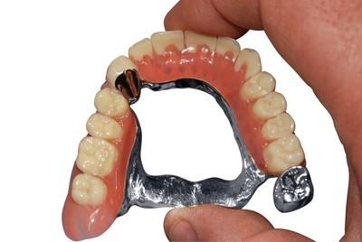 ganzheitliche Zahnheilkunde Dr. Heike Kretschmar - teleskopierender Zahnersatz