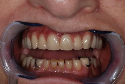 ganzheitliche Zahnheilkunde Dr. Heike Kretschmar - Zahnersatz mit Lippenabhalter