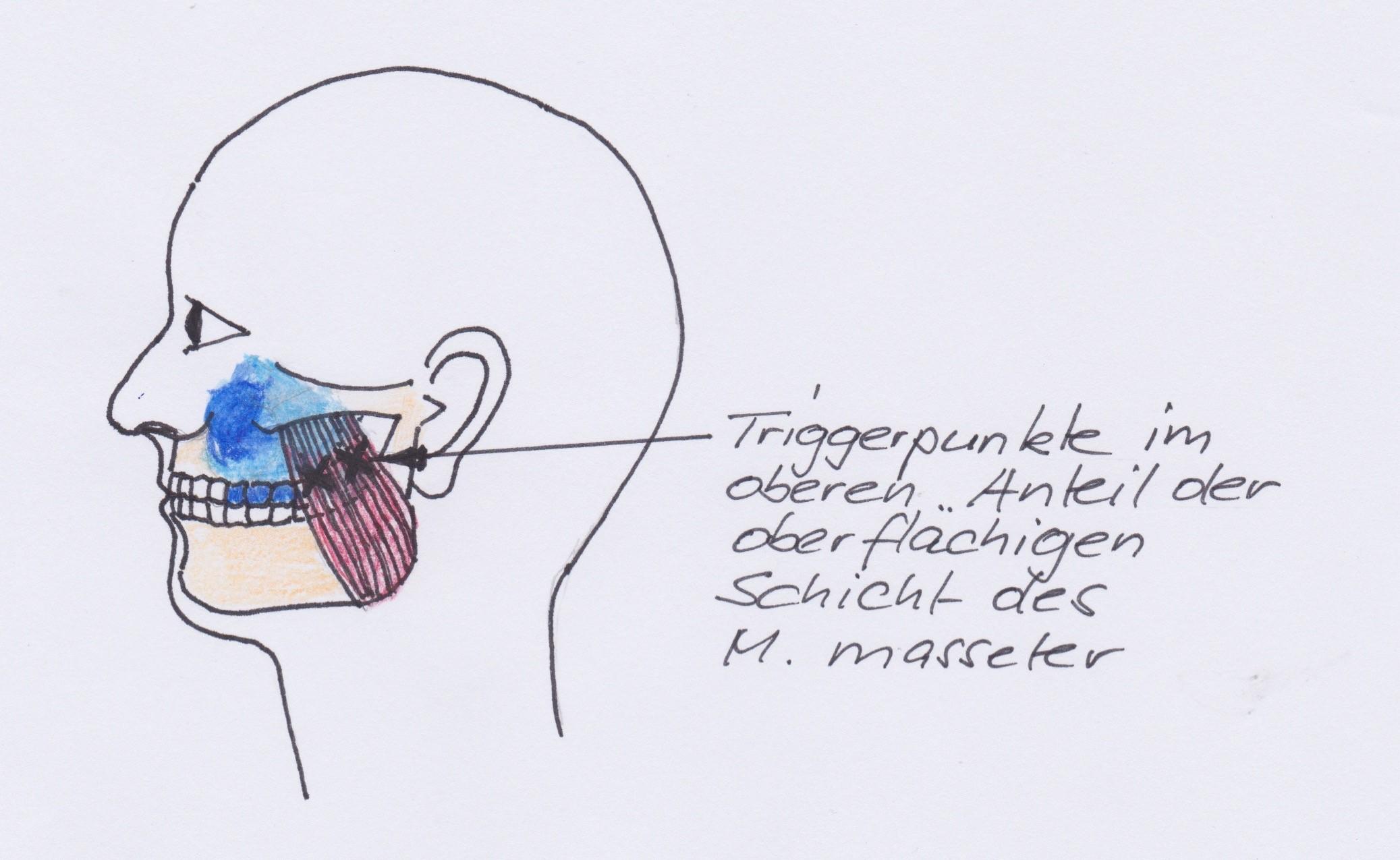 ganzheitliche Zahnheilkunde Dr. Heike Kretschmar - Muskeltriggerpunkte