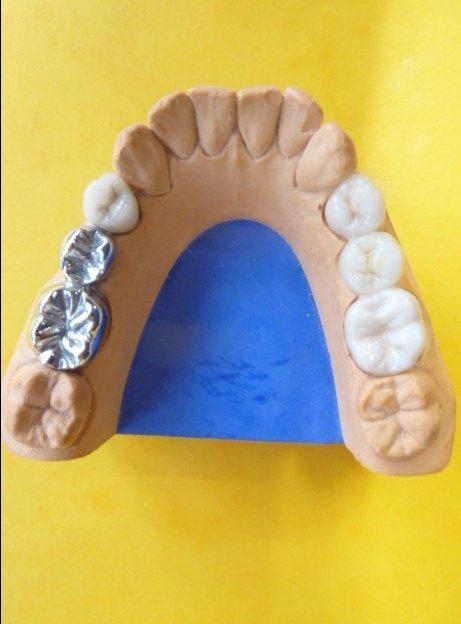 ganzheitliche Zahnheilkunde Dr. Heike Kretschmar - Modell eines Unterkiefers