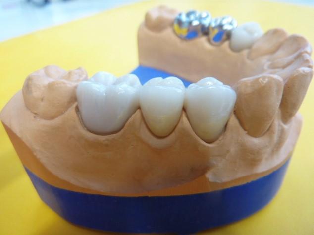 ganzheitliche Zahnheilkunde Dr. Heike Kretschmar - Modell von der Seite