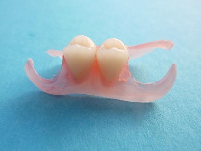 Tragekomfort mit ansprechender Ästhetik - ganzheitliche Zahnheilkunde Dr. Heike Kretschmar
