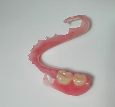 ganzheitliche Zahnheilkunde Dr. Heike Kretschmar - Zahnersatz für den Unterkiefer
