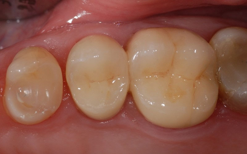 ganzheitliche Zahnheilkunde Dr. Heike Kretschmar - Zustand nach Sanierung