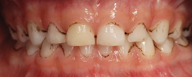 ganzheitliche Zahnheilkunde Dr. Heike Kretschmar - Black Stain vor der PZR