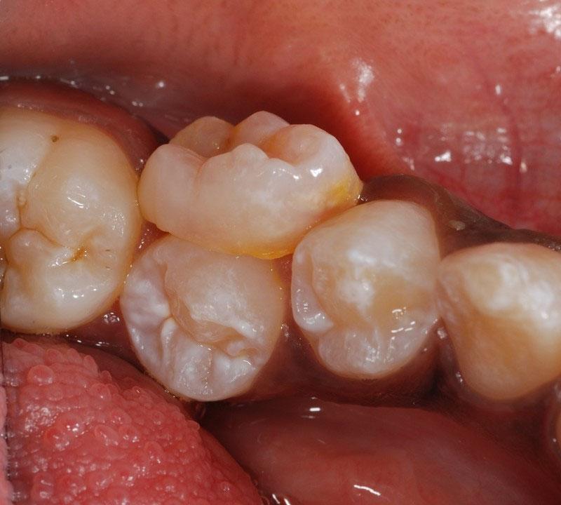 ganzheitliche Zahnheilkunde Dr. Heike Kretschmar - Zahnwechsel von einem bleibenden Prämolaren